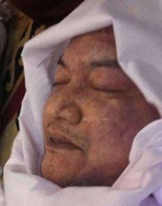Muka Jenazah Husni Kamil Manik berbintik-bintik merah. Ada apa gerangan?